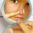 Masna, problematična koža – moje iskustvo