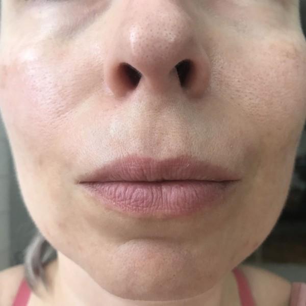 Područje oko usana prije prvog korištenja, bez filtera i obrade.