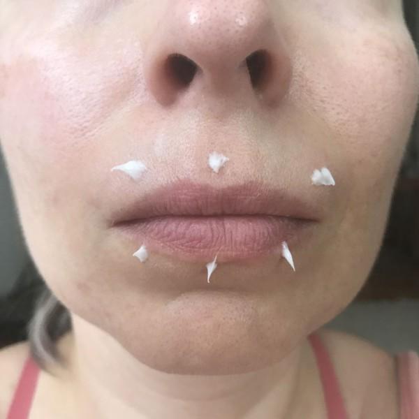 Područje oko usana prije prvog korištenja, s nanesenim tretmanom prije masaže, bez filtera i obrade.