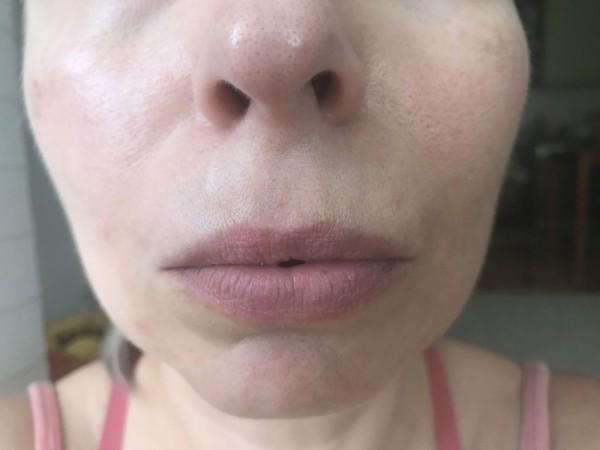 Područje oko usana nakon prvog korištenja ujutro, bez filtera i obrade.