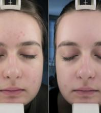 Laserska lipoliza donjeg dijela lica u poliklinici Poliderma