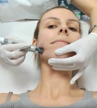 Kako pomladiti lice – oštećenjima kože?